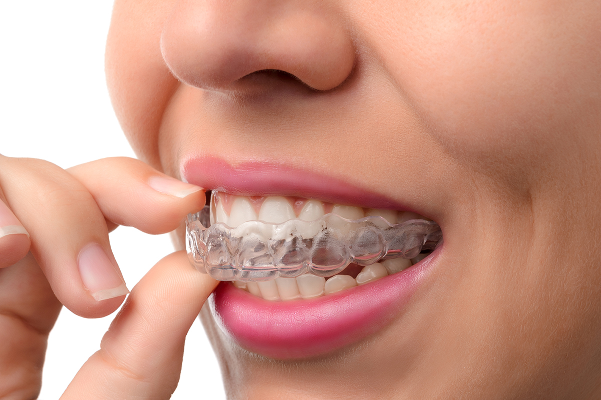 Invisalign - Whitewing Dental