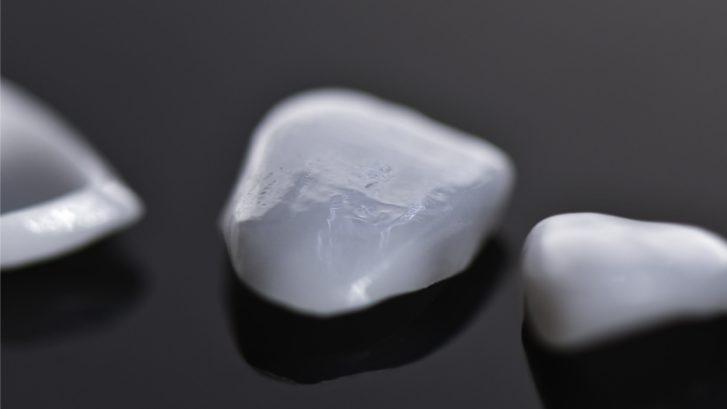 White front teeth veneers. Close up.